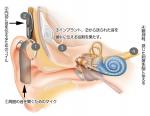 人工内耳の手術ってどうやるの? 費用と病院は?
